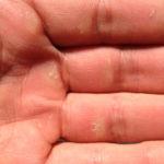 KletterRetter im Test: Handcreme für kaputte Kletterhände
