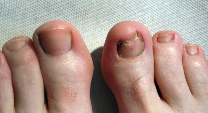 Nagelpilz Befall an einem Fuß